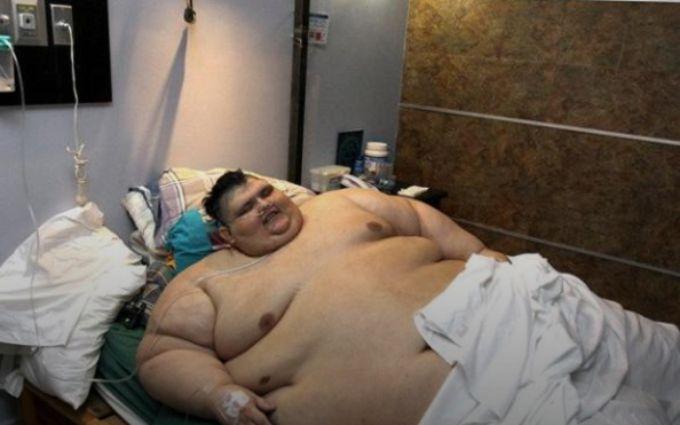 В Мексике прооперировали мужчину весом почти в 600 килограмм
