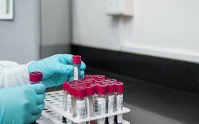 Неймовірно: вчені розробили ДНК-тест для визначення тривалості життя