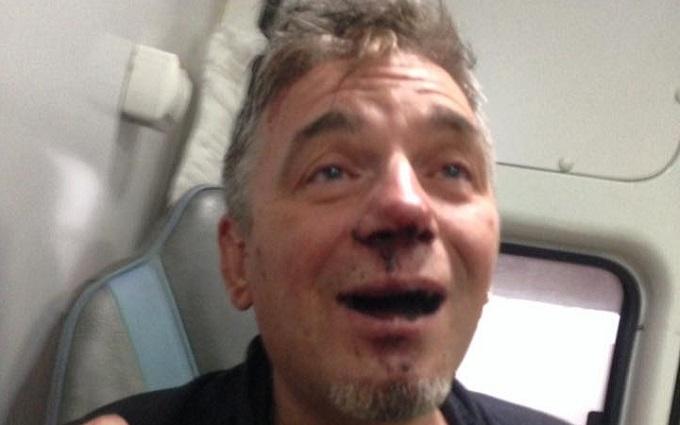 У Росії побили відомого художника, соцмережі киплять