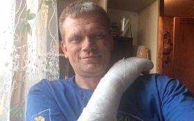 Бывший министр-свободовец пострадал в ДТП и показал фото с места аварии