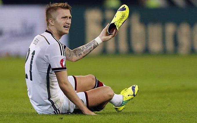 Німеччина втрачає трьох футболістів перед стартом Євро-2016