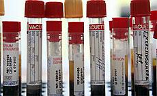 """Найден белок, """"запирающий"""" вирус СПИДа внутри клеток человека"""