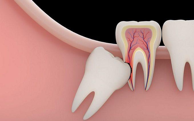 Нужно ли удалять зуб, если он постоянно болит?