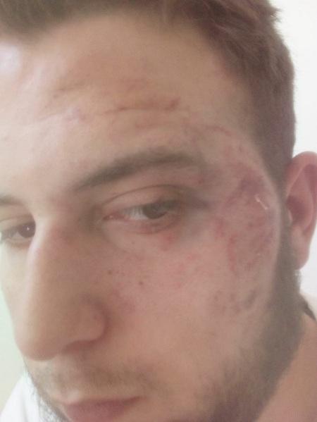 Невідомі побили українського журналіста: з'явилося фото (1)