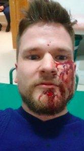 Из-за избиения иностранных журналистов в Чечне разгорается скандал: опубликованы фото (1)