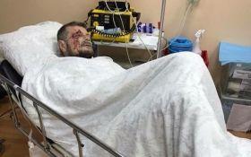 Покушение на Мосийчука в Киеве: врачи рассказали о состоянии нардепа
