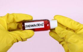 Угроза бессимптомных случаев COVID-19: МОЗ пояснило, что будет делать