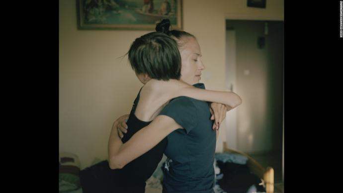 Как лечат больных анорексией девушек: шокирующие фото (2)