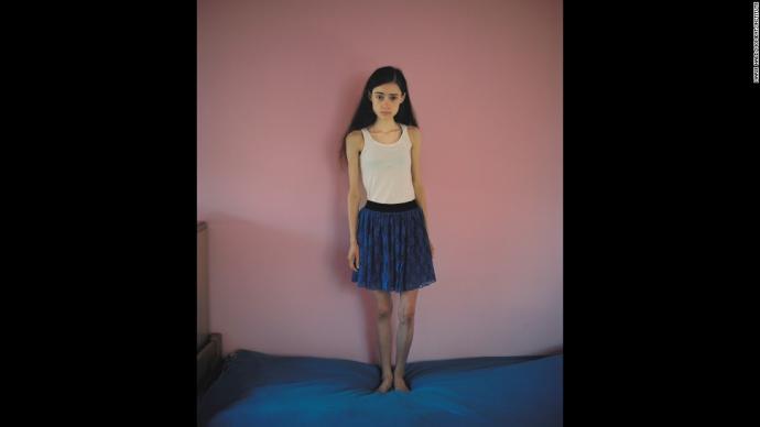 Как лечат больных анорексией девушек: шокирующие фото (1)