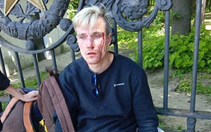 В Києві побили учасника ЛГБТ-маршу: опубліковані фото