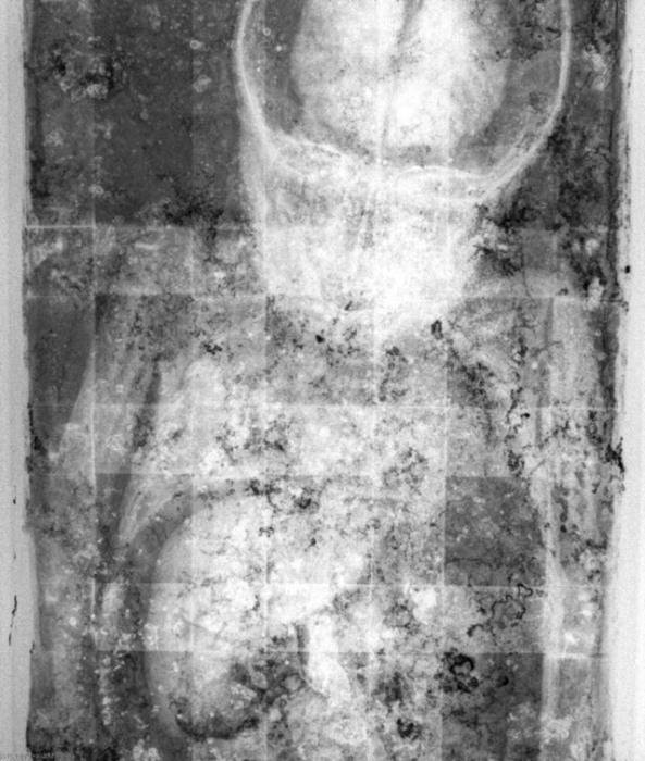 Тело спящей красавицы на рентгене